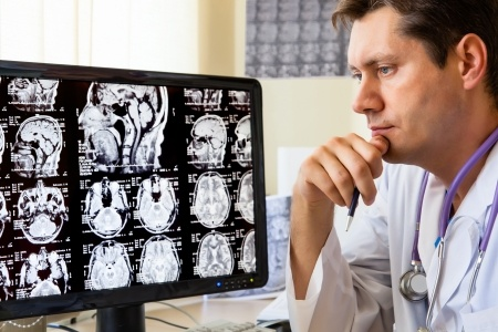 brain donation