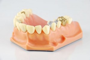 cremation and gold teeth